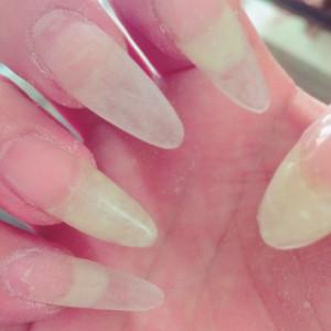 バラバラの長さの爪も…ネイルサロン 東武練馬